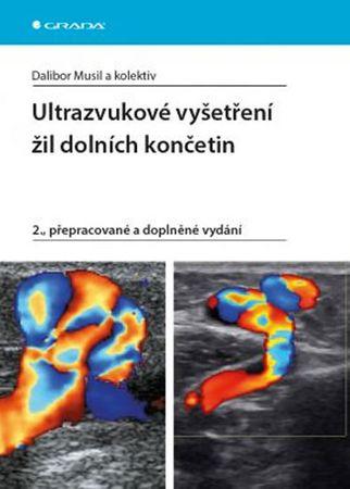 Musil Dalibor: Ultrazvukové vyšetření žil dolních končetin