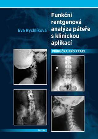 Rychlíková Eva: Funkční rentgenová analýza páteře s klinickou aplikací