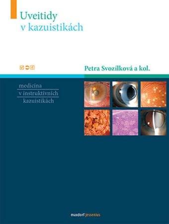 Svozílková Petra a kolektiv: Uveitidy v kazuistikách