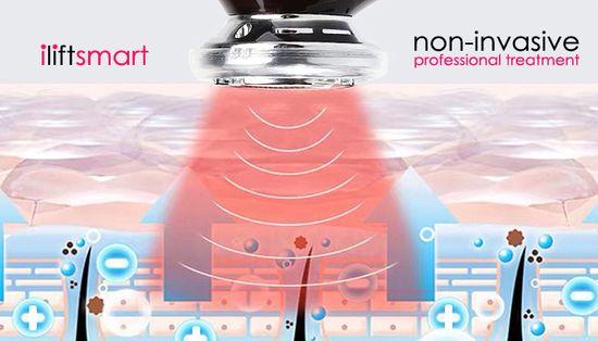 BeautyRelax Urządzenie kosmetyczne Beautyrelax iLift Smart
