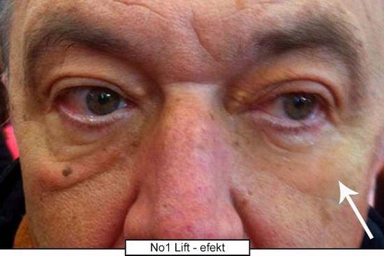 di ANGELO cosmetics Revolučný očný krém s okamžitým efektom No.1 Lift (Eye Cream) 15 ml