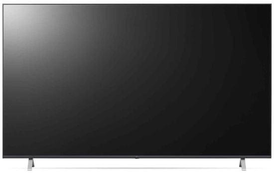 LG 70UP77003LB Smart LED TV, 177 cm, 4K Ultra HD, HDR, webOS ThinQ AI, Sötétszürke